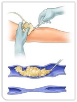 scleroterapia